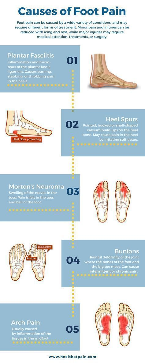 Foot pain chart: Do you know what\'s causing your foot pain? It may ...