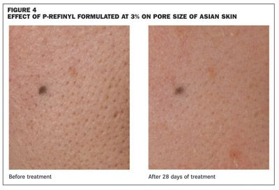 Skin care – The refinement of pores | Beautiful NATURALLY | Skin