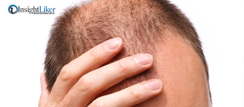 Hair loss masturbation