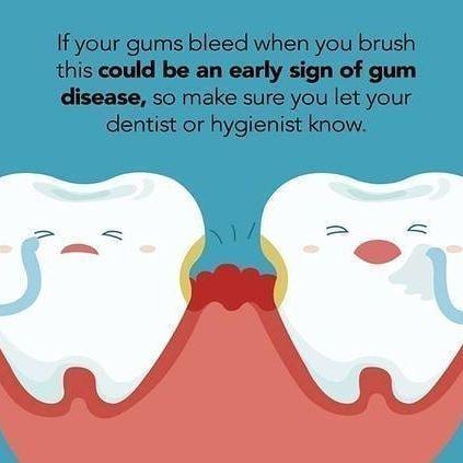 #Fitness #TeethWhitening #Smile #Healthy #Photooftheday #dentaltips