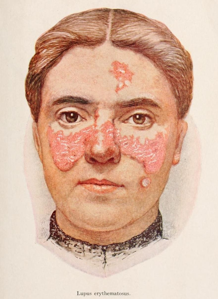 What Are The Causes For Swollen Painful Boils On The Nose And ...