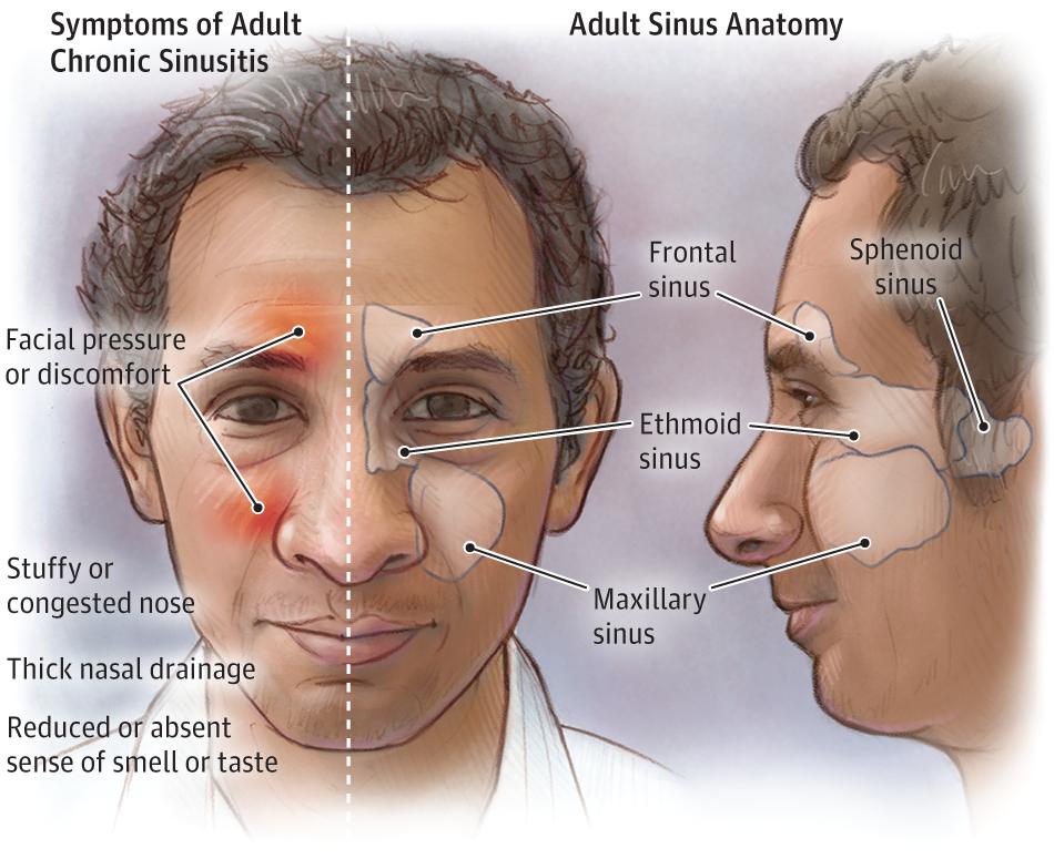 Chronic sinusitis (chronic rhinosinusitis) is a common condition ...