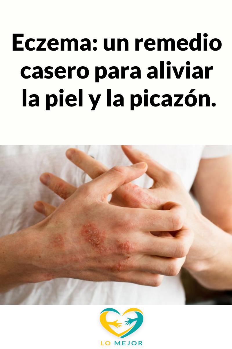 Eczema Un Remedio Casero Para Aliviar La Piel Y La Picazón Thumbs Up Holding Hands