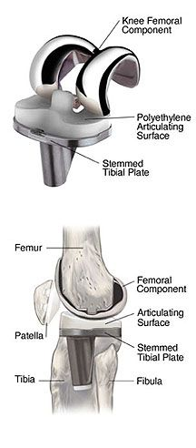 31+ Knee replacement surgery with osteoporosis ideas in 2021