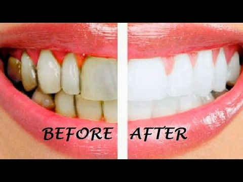 How To Whiten Teeth At Home In 3 Minutes Home Teeth Whitening