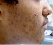 acne brown spots