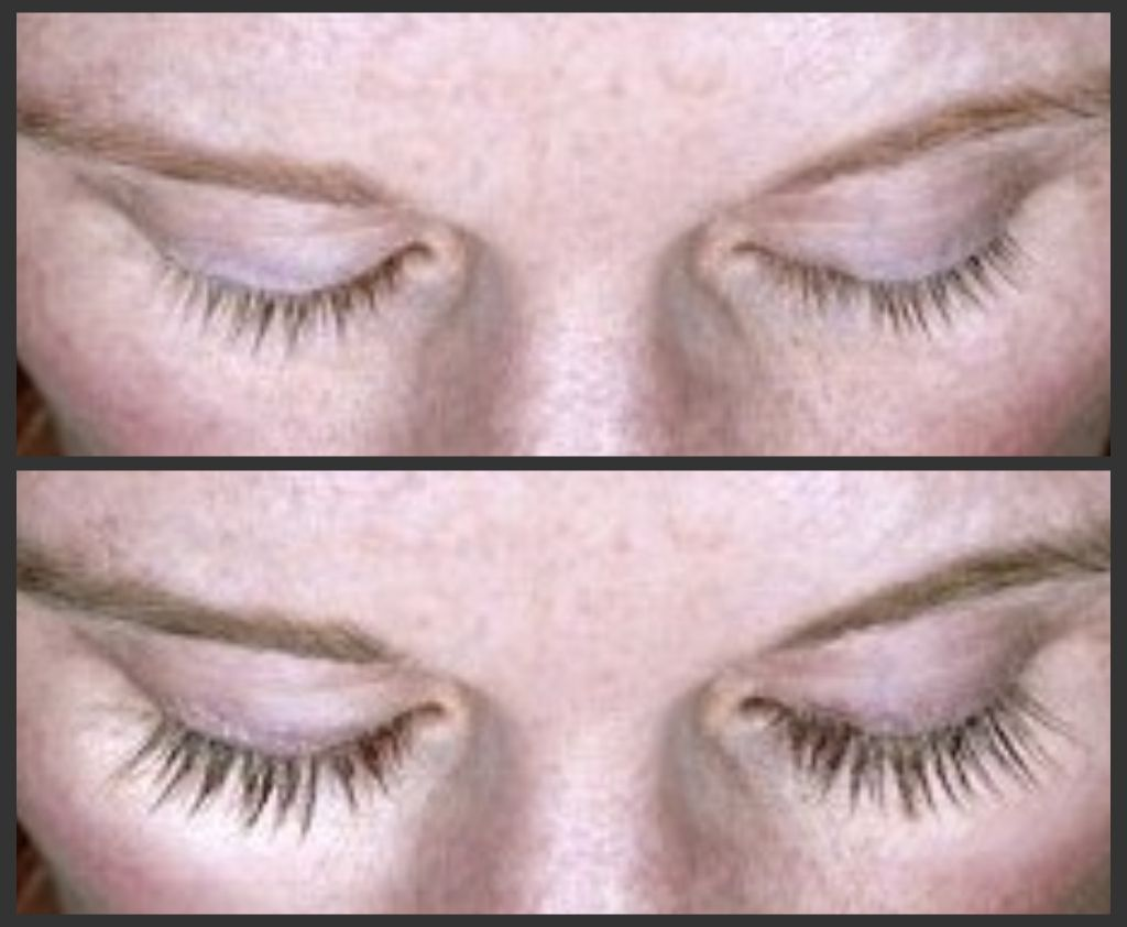 26e3fcf0680 It's amazing what #Latisse does to your natural eyelashes. Eyelash Growth  Serum, Eyelash