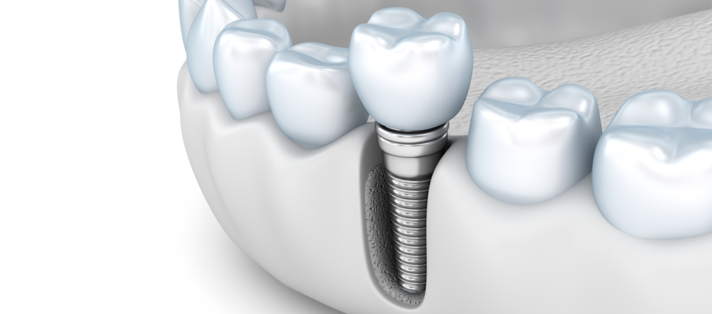 عملية زراعة الاسنان من اهم الاساليب الحديثة لاصلاح الاسنان التالفة و التي بها الكثير من المشاكل و افضل البدائل لل Dentistry Corded Phone Electronic Products