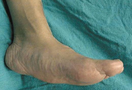 Milf nylon stocking shoeplay video