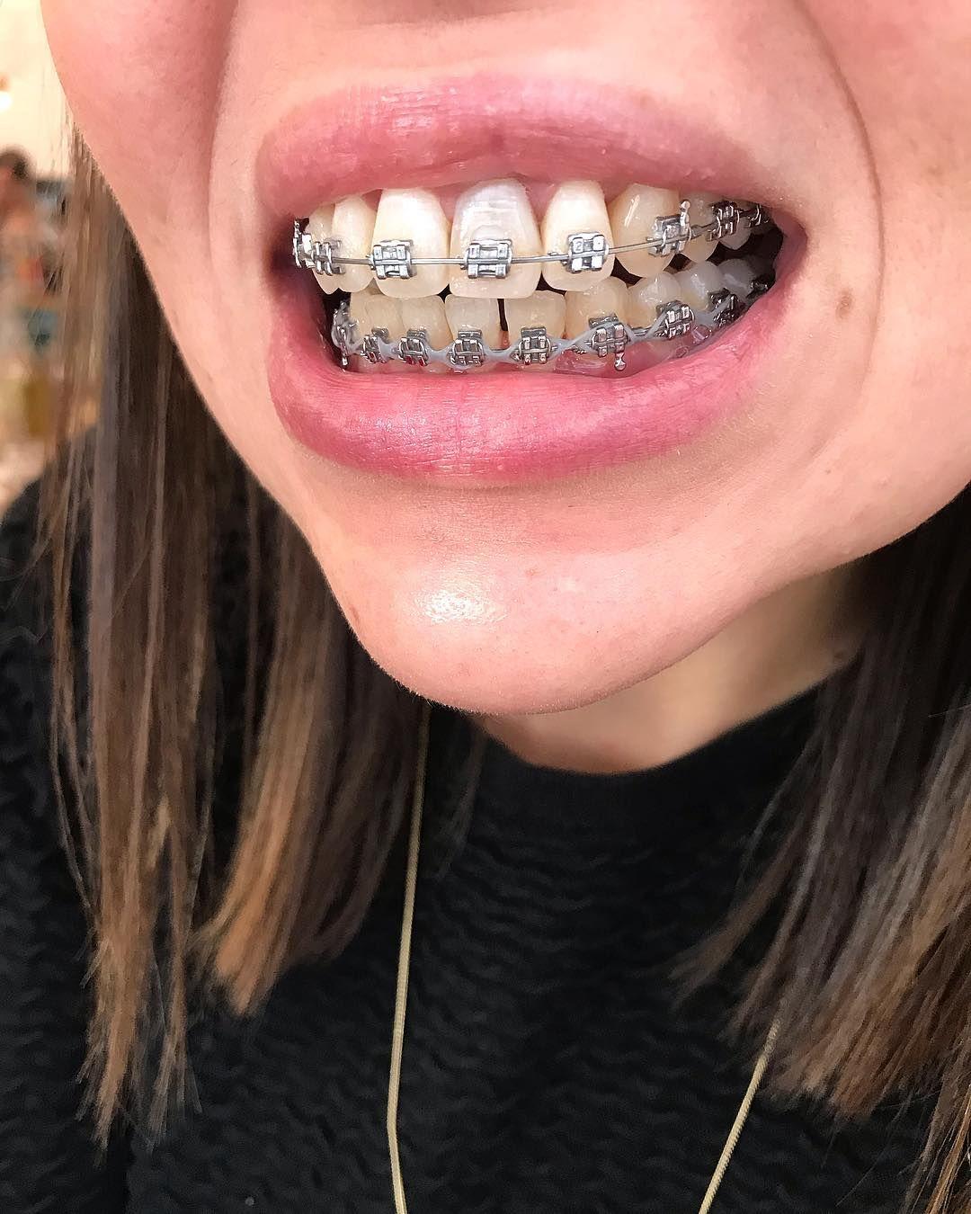 правильно клеить фото металлических брекетов на зубах брат