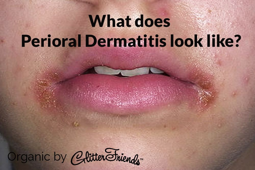 Perioral Dermatitis Presents As Multiple Red Pimple Like Bumps
