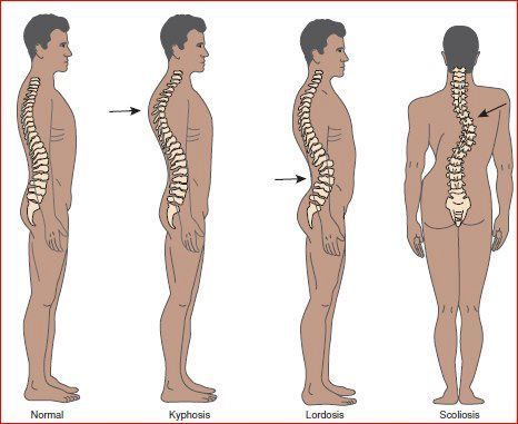 Image result for spinal disease