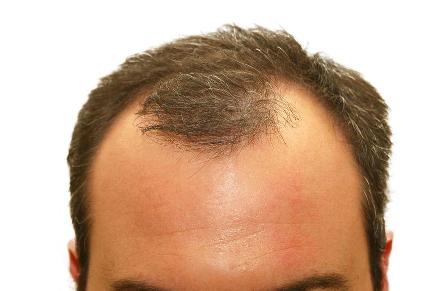 hair loss treatment Baton Rouge