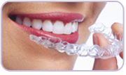 Q: Do I Still Need to Wear a Retainer After Invisalign? A ...