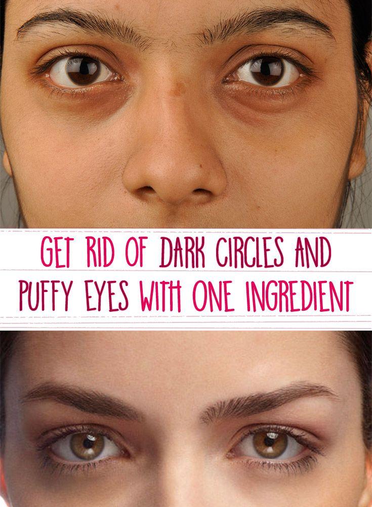 Dark Circles? Get Rid of Dark Circles and Puffy Eyes With