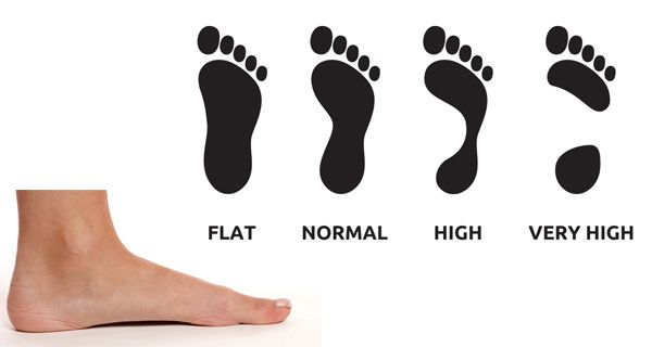 65b73d32b0 What is High Arch Feet? The high-arch issue is something which is hard to  manage when it comes to difficulties with your foot and makes buying for.