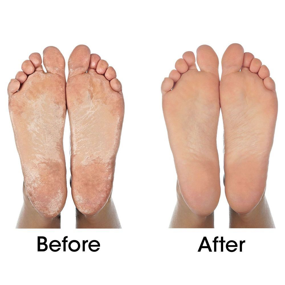 Natural Treatment For Foot Callus