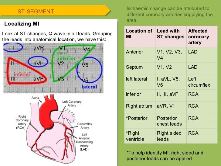 cardiac artery and ecg lead - Google Search (With images ...