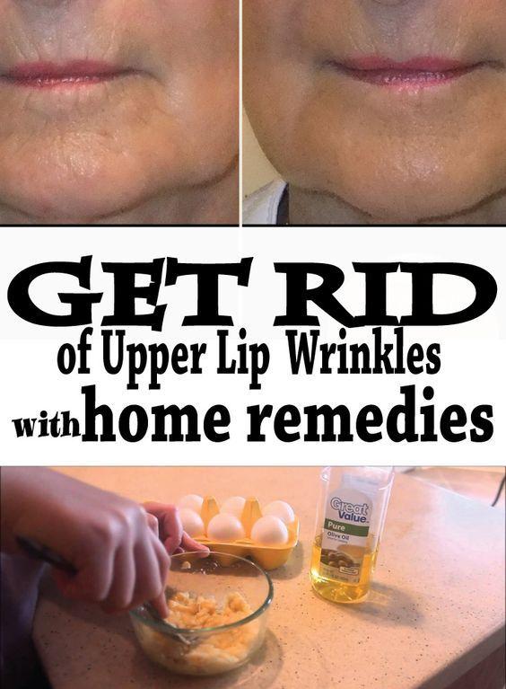 9bb644e868affe269fd4537bda6e0bca - How To Get Rid Of Deep Lines On Upper Lip