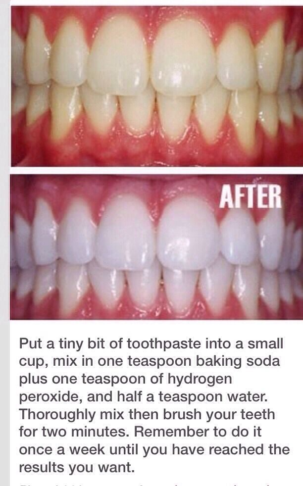 Whiten Your Teeth In 2021 Health And Beauty Beauty Hacks Diy Beauty