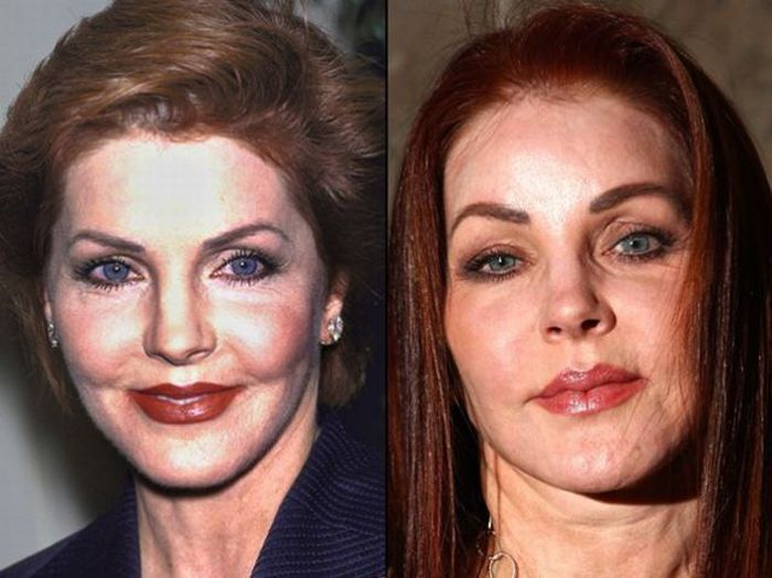 Priscila Presley disfigured her face with plastic surgery 03.02.2010