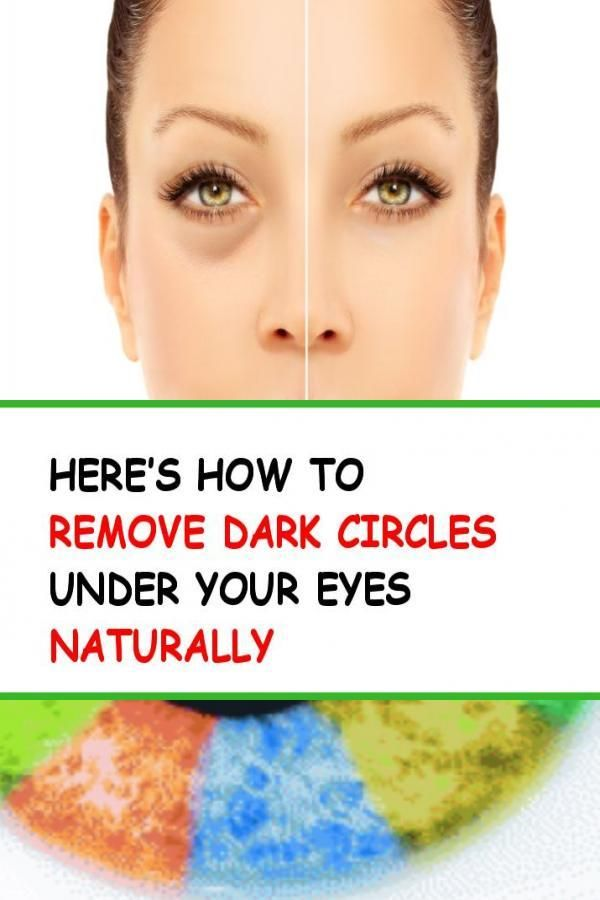 Here's How To Remove Dark Circles Under Your Eyes ...