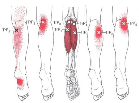 Gastrocnemius | The Trigger Point & Referred Pain Guide | Health Myofascial Release Trigger