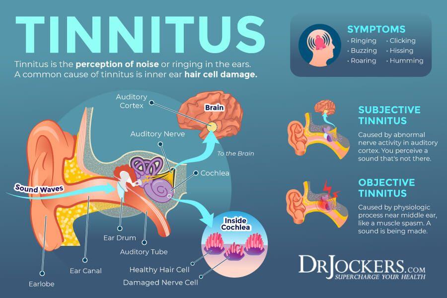 Tinnitus Symptoms Causes And Natural Support Strategies In 2021 Tinnitus Symptoms Tinnitus Remedies Treatment For Tinnitus