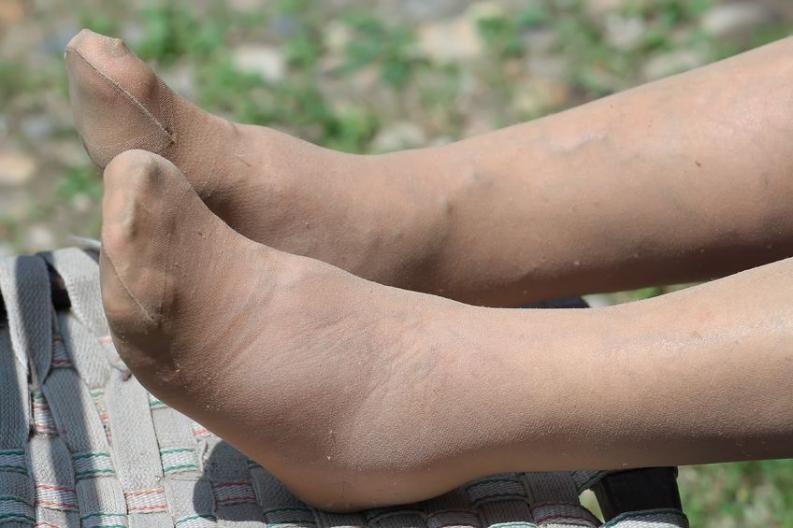 gyógymódok a duzzadt lábak ellen