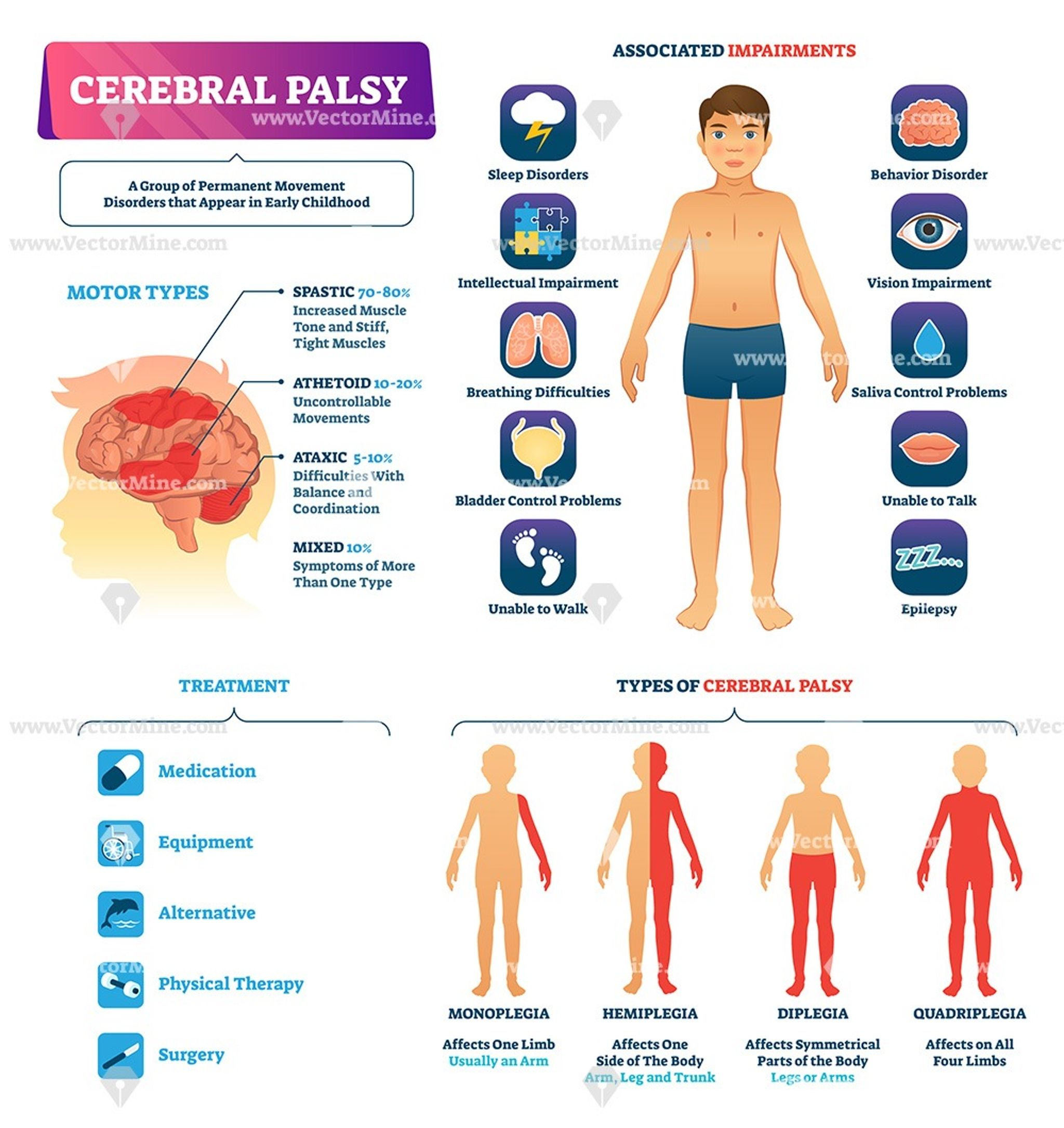 Cirrhosis Medical Vector Illustration Infographic Diagram Manual Guide