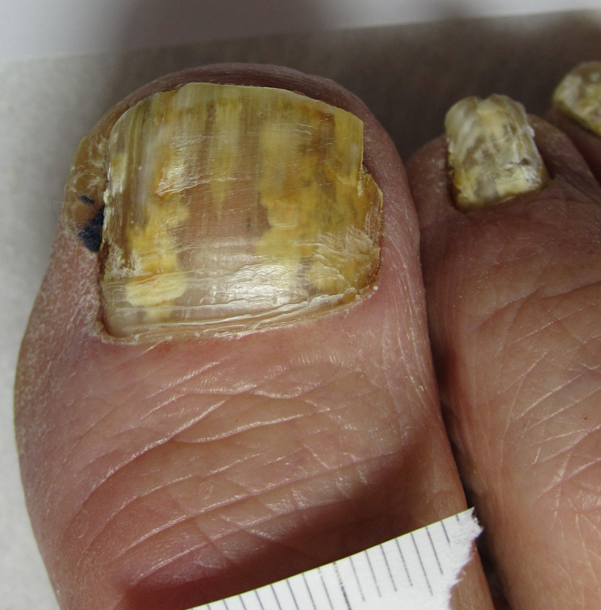 How to Get Rid of Fungal Nail Infection | Fungal nail, Nail ...