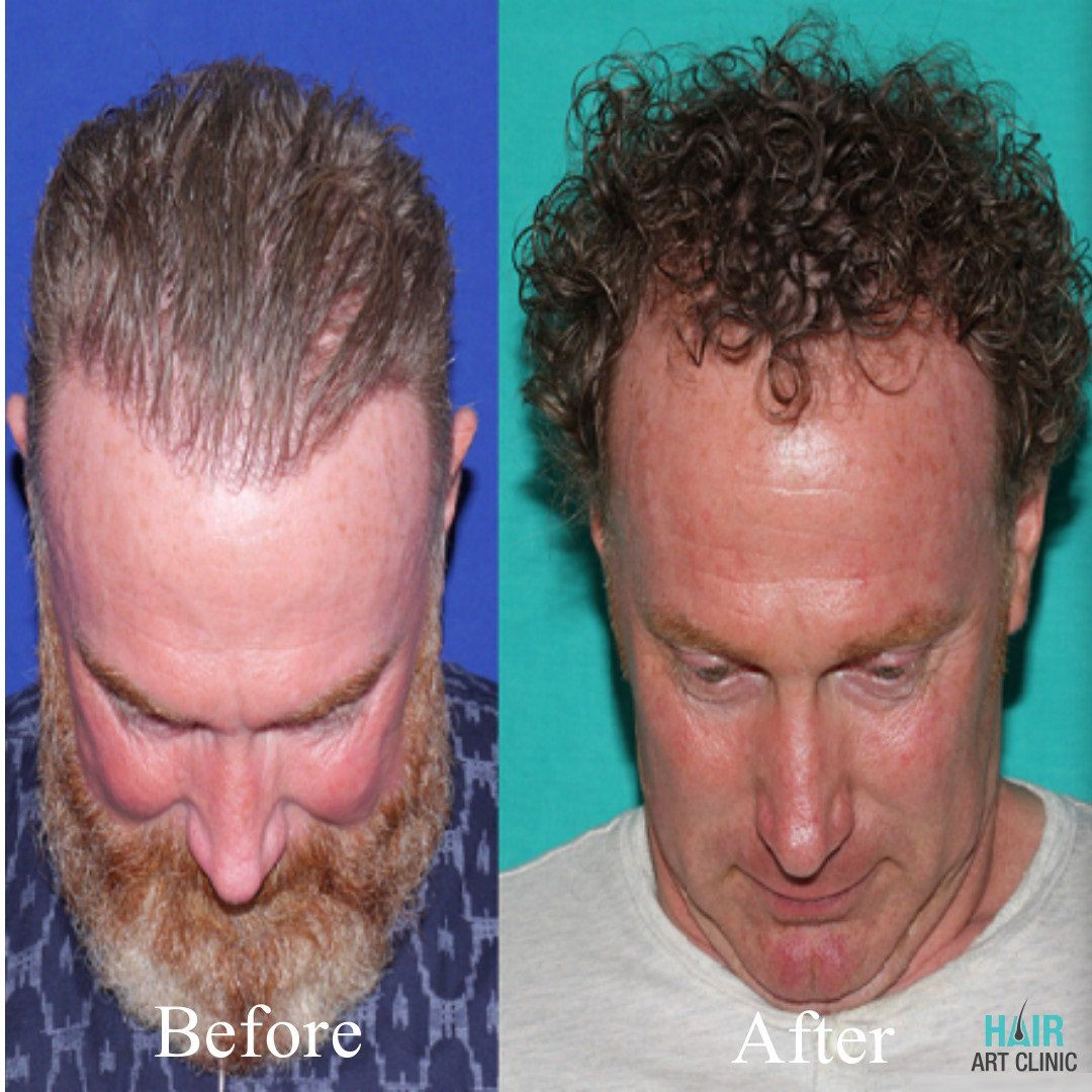 Hair Transplant on Hair transplant, Hair, Hair loss