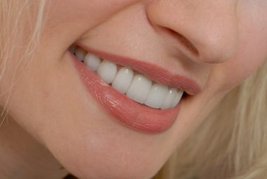 Dental Care Beverly Hills Wish To Serve Best Aid For Emergency