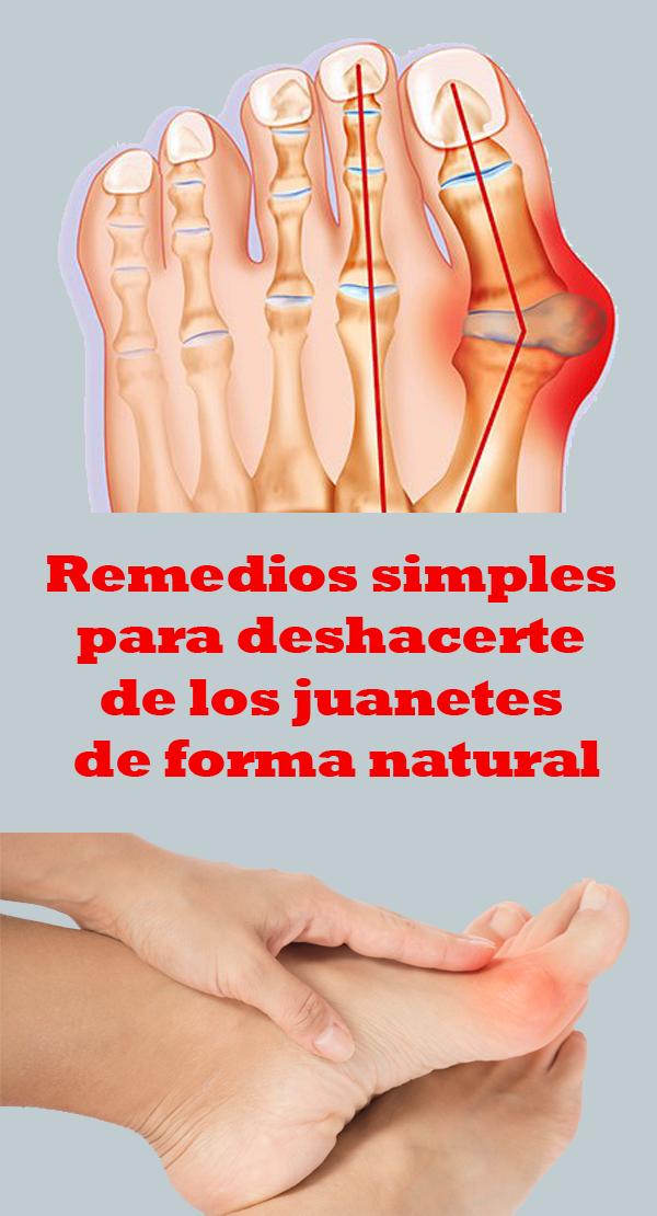 Remedios Simples Para Deshacerte De Los Juanetes De Forma Natural Health Keto Diet For Beginners Health Tips