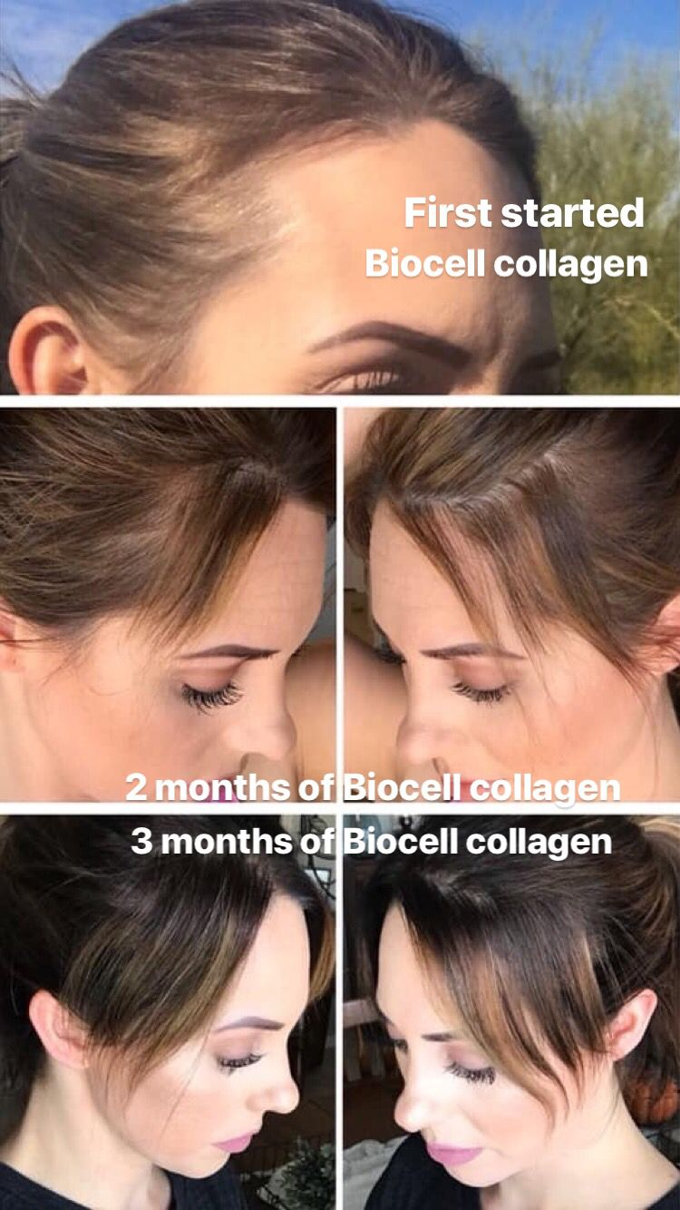 Biocell Collagen Grow Hair Fast With Images Collagen Benefits