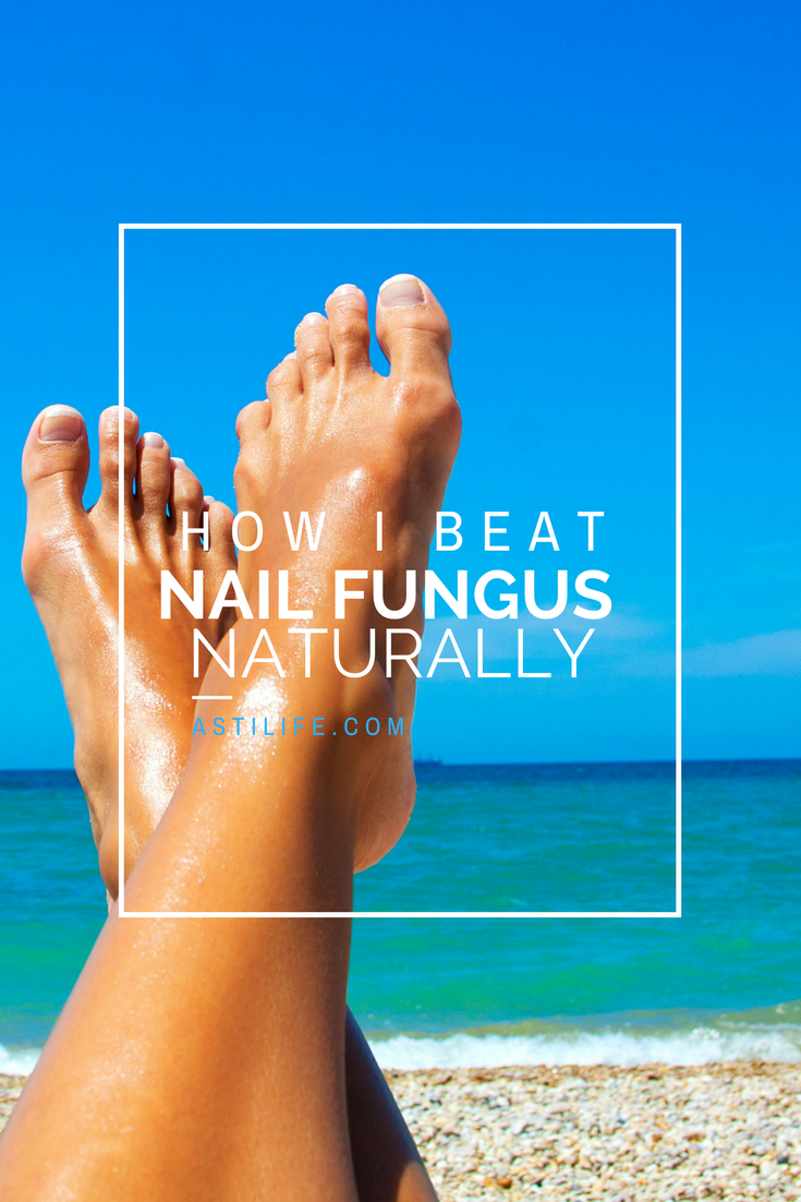 How I got rid of my dreaded and embarrassing Nail Fungus http://blog ...