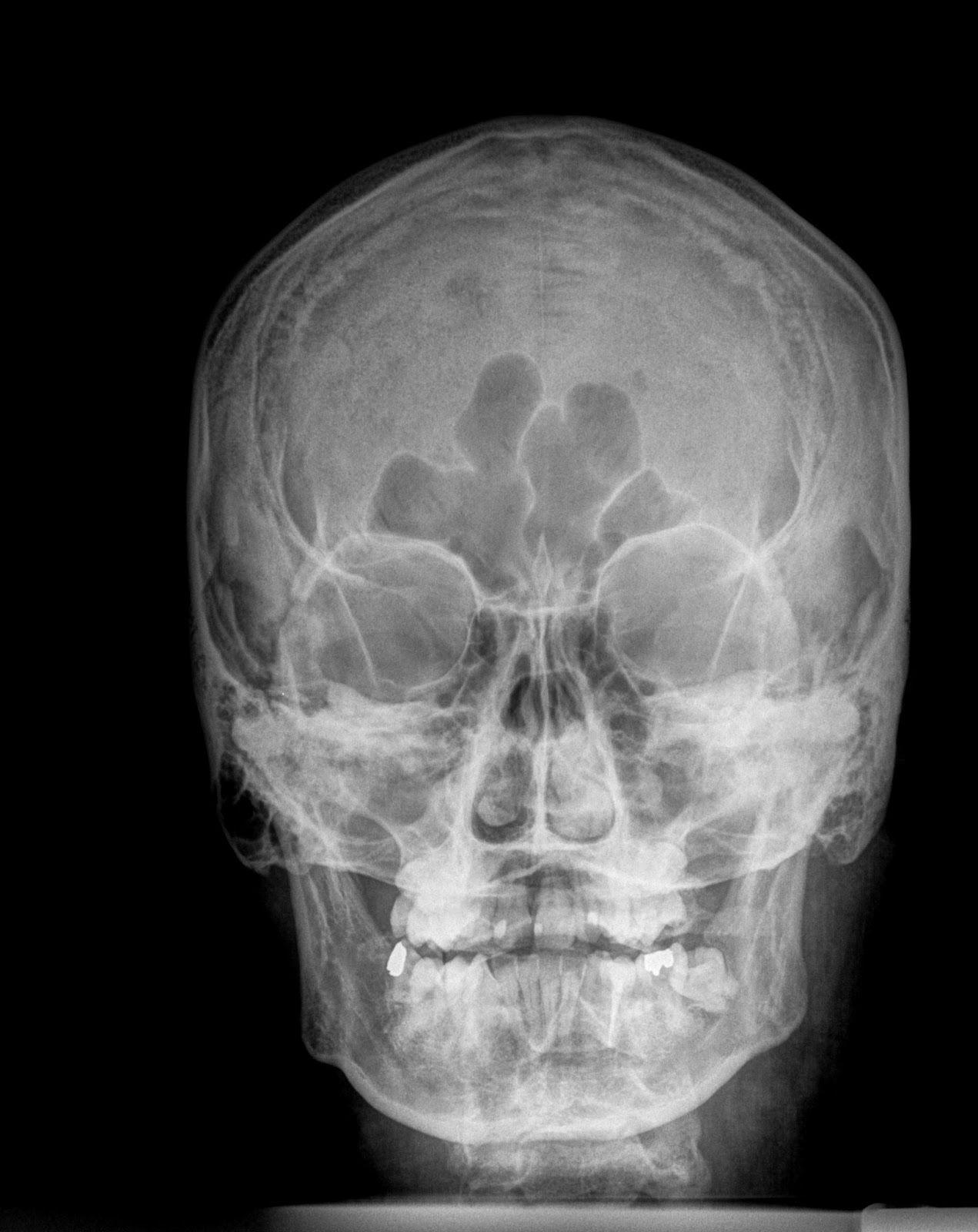 Radiografía de la cabeza, frente.   Radiologhy   Pinterest   Grabado