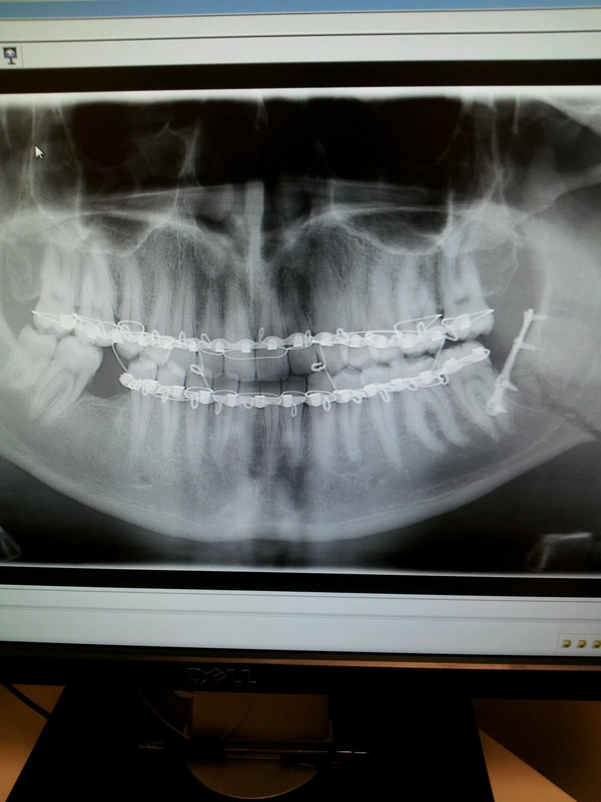 My son\'s broken jaw. Rod inserted and wired shut. Liquid diet, now ...