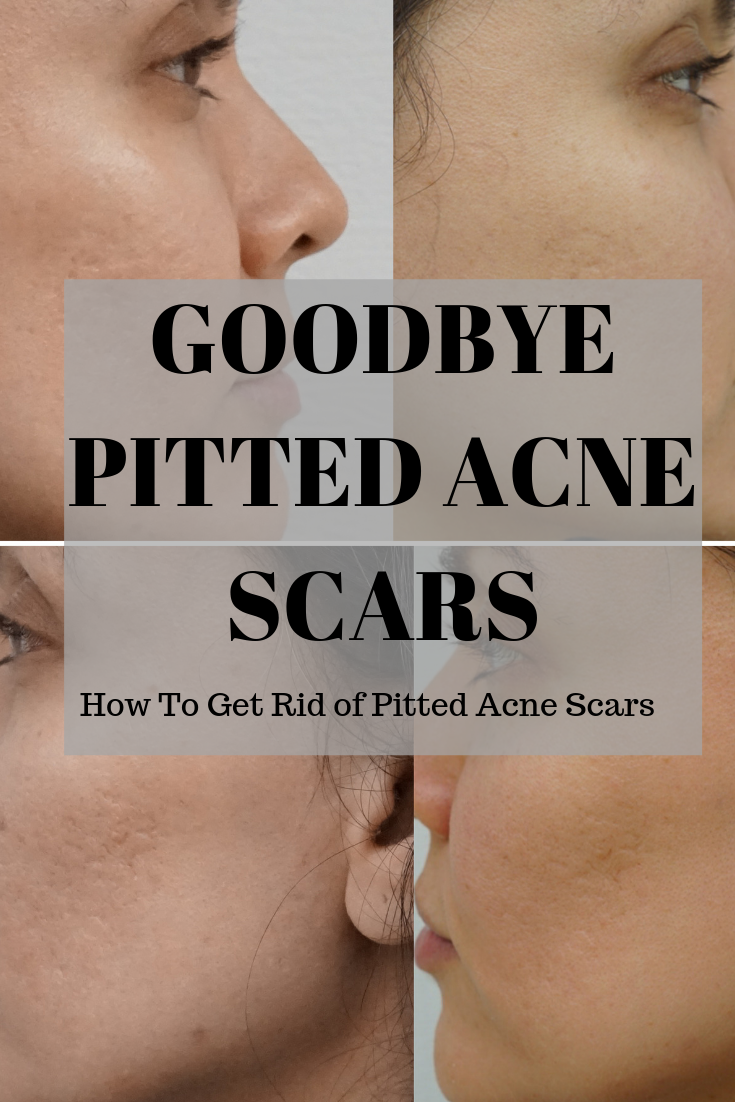 Pin On Natural Skin Care Routine Acne Scars