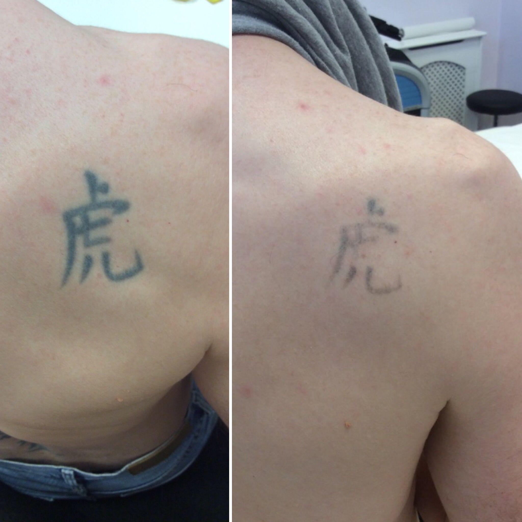 Specialising In Laser Tattoo Removal Skin Rejuvenation Laser Tattoo