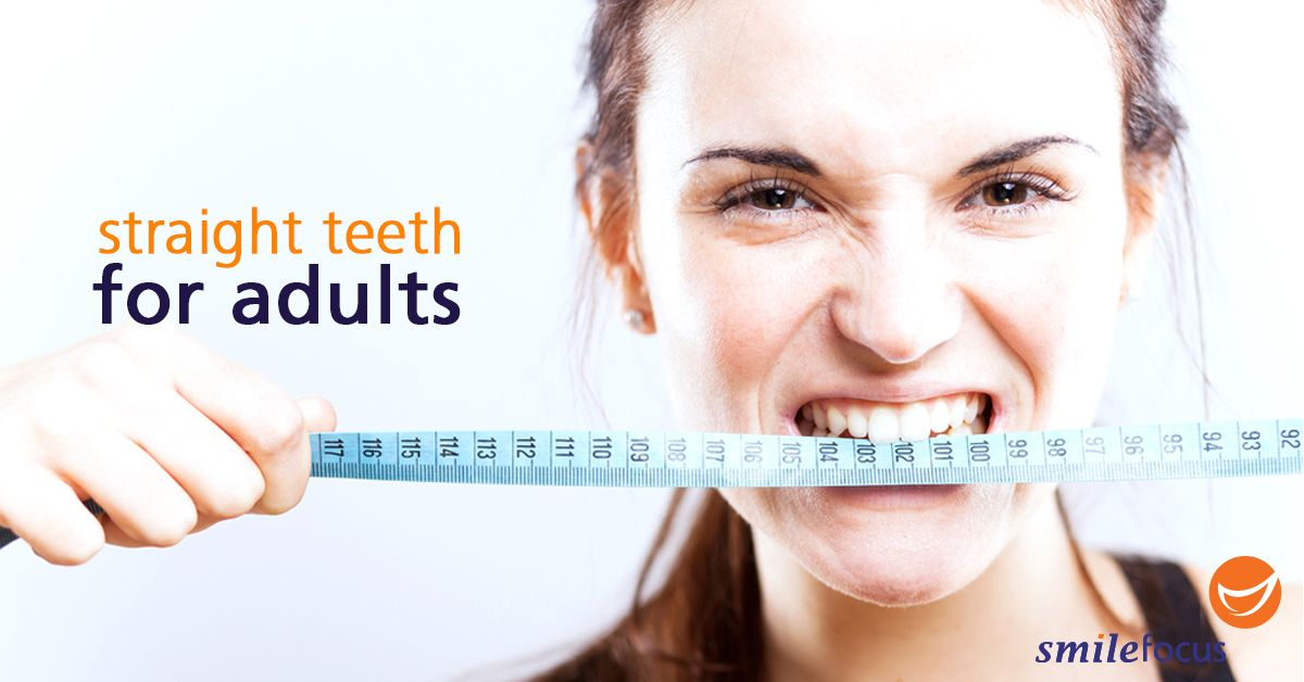 It's never too late for adults to achieve straight teeth