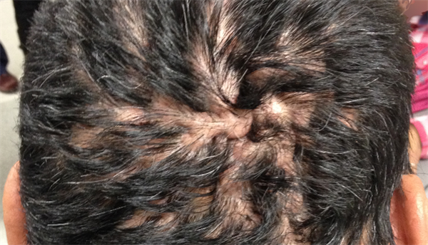 how to get rid of hair bumps on scalp