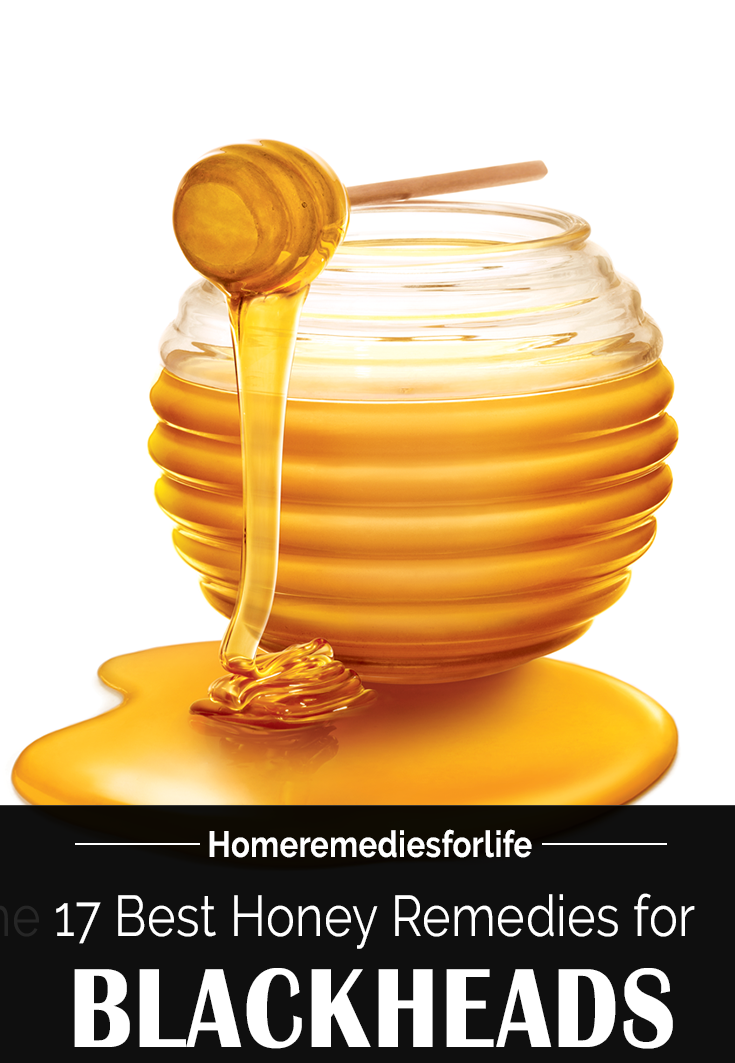 Honey for Blackheads