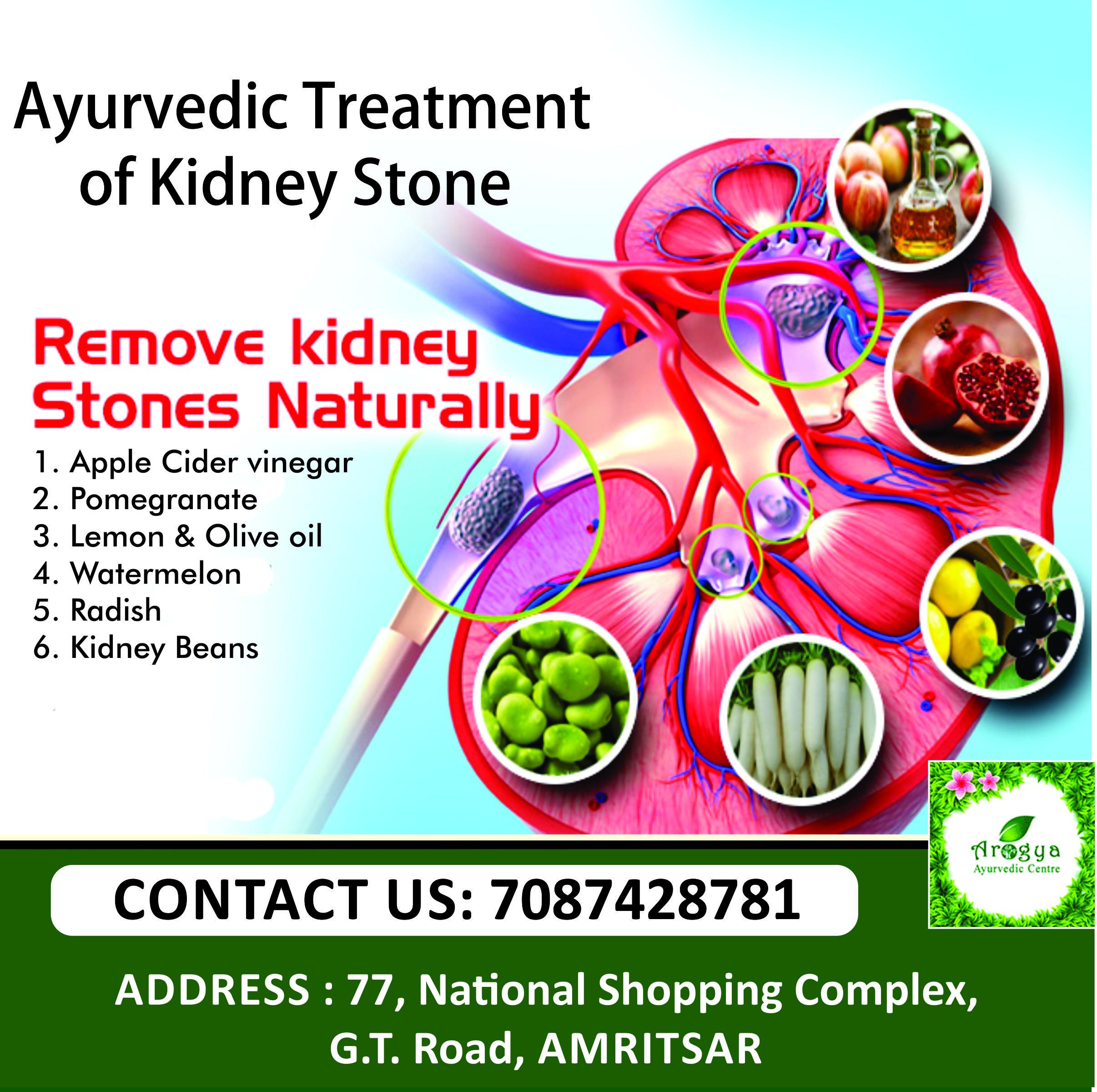 Remove Kidney Stone Naturally Kidney Stones Kidney Ayurvedic Treatment