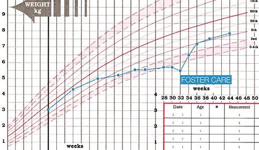 cdc infant growth chart failure to thrive google search