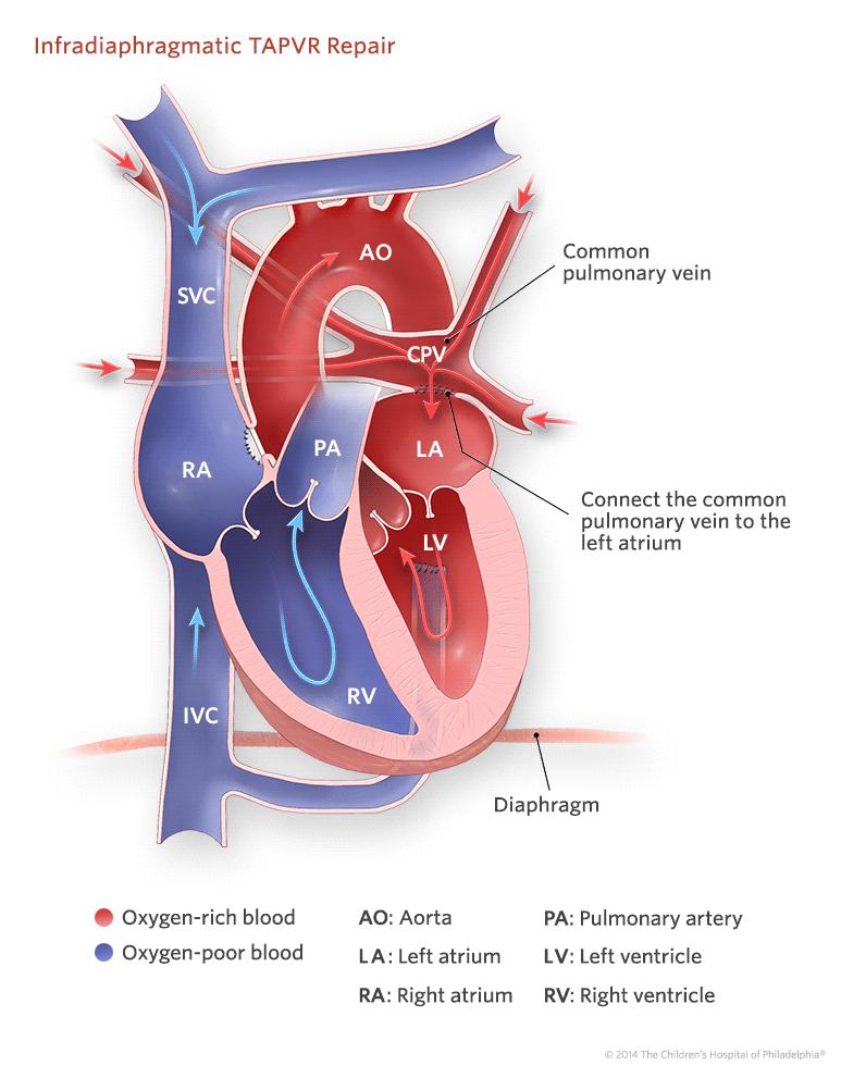 total anomalous pulmonary venous return arteriosus mixing - Google ...