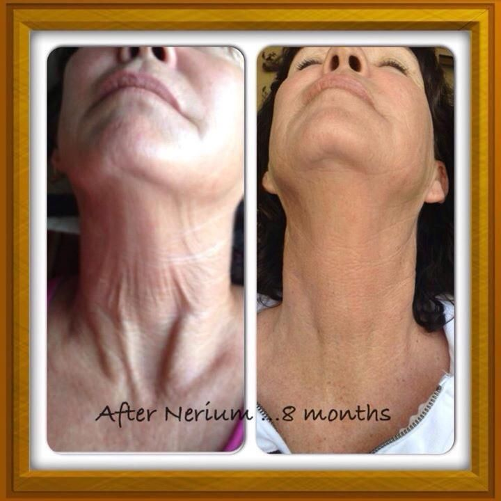 Pin by barbara babikian on neriumad before after photos
