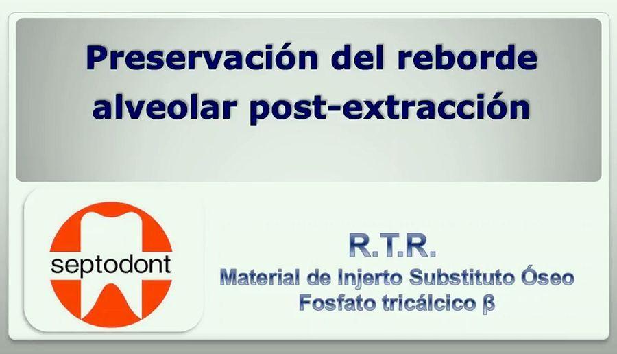 preservación-reborde-alveolar