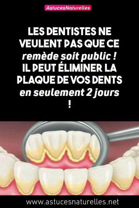 Les dentistes ne veulent pas que ce remède soit public! Il peut éliminer la plaque dentaire de vos dents en seulement 2 jours!