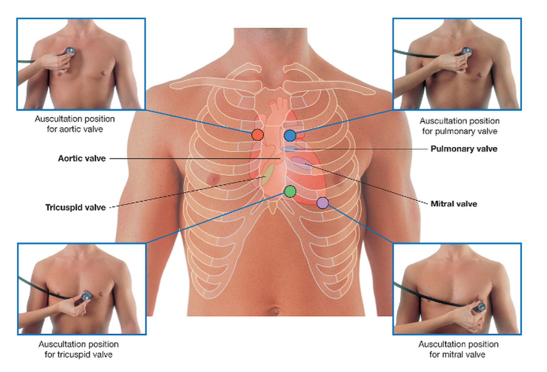 Heart auscultation lung auscultation assessment landmark placement ...